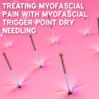 Treating myofascial pain with myofascial trigger point needling