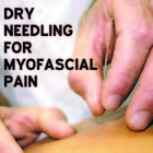Dry needling for myofascial pain - research review