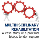 Proximal Biceps Tendon Rupture of the Hamstring: A Case Study [Article]