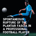 Spontaneous Rupture of the Plantar Fascia in a Professional Football Player [Article]