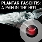 Plantar Fasciitis: A Pain in the Heel [Article]