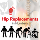 Hip Replacements in Numbers [Infographic]