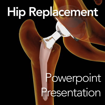 Hip Replacement: Powerpoint Presentation/Webinar for Clients