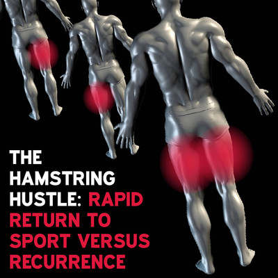 The Hamstring Hustle: Rapid Return to Sport Versus Recurrence [Article]